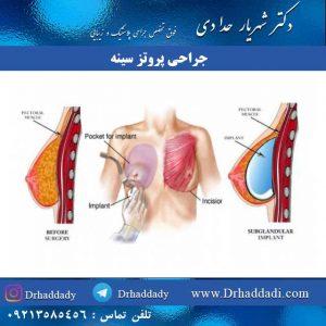 جراحی پروتز سینه