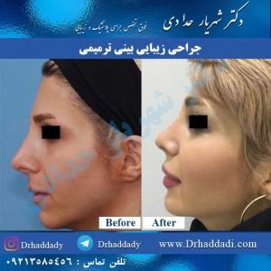 ترمیم بینی عمل شده