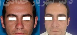 جراحی بینی در سن بالا