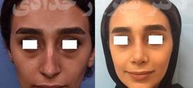 کوچک کردن سوراخ های بینی