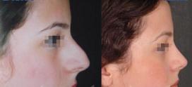 سوالات متداول در جراحی بینی استخوانی