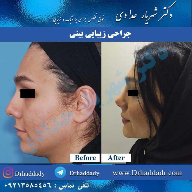 روش های مختلف جراحی بینی