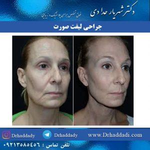 جراحی بالا کشیدن پوست صورت