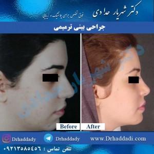نغذیه پس از جراحی بینی