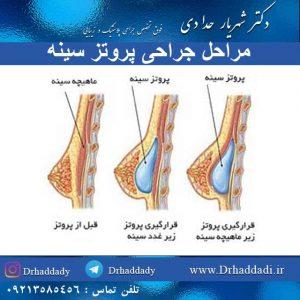 مراحل جراحی پروتز سینه
