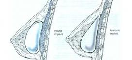 اقدامات لازم قبل از پروتز سینه