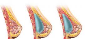 هر آنچه که در خصوص پروتز سینه باید بدانید