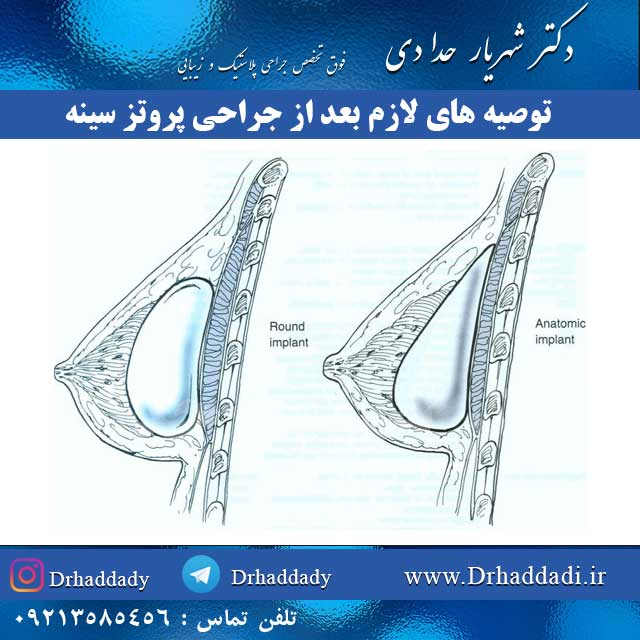 توصیه های لازم بعد از جراحی پروتز سینه