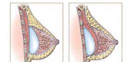 نکاتی مهم درباره پروتز سینه