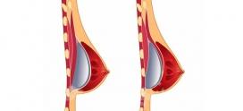 بارداری و شیردهی بعد از جراحی پروتز سینه