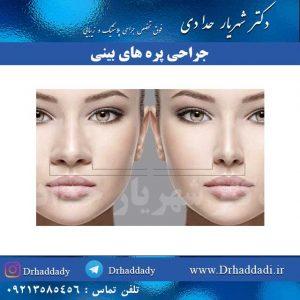جراحی پره های بینی