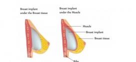 عمل پروتز سینه چگونه انجام می شود ؟