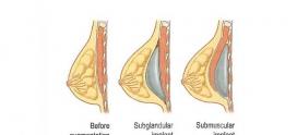 قبل و بعد پروتز سینه