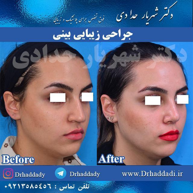 روش جراحی باز بینی