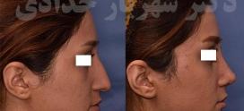 بهترین جراح بینی طبیعی