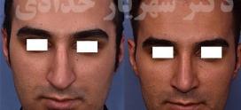 جراحی بینی بدون بیهوشی
