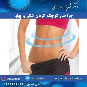 جراحی کوچک کردن شکم و پهلو