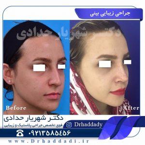 جراحی بینیی
