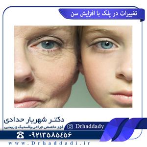 تغییرات در پلک با افزایش سن