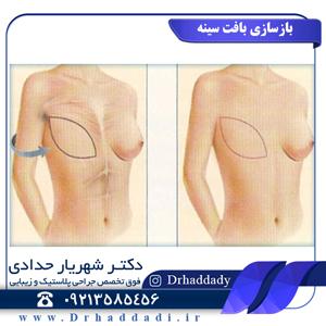 بازسازی سینه بعد از سرطان