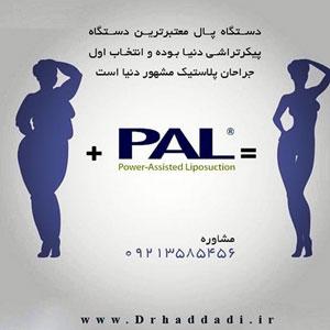 لاغری با دستگاه پال
