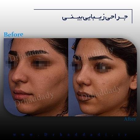 جراحی بینی دکتر حدادی