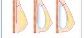 چقدر درباره مراقبت های بعد از جراحی سینه می دانید؟