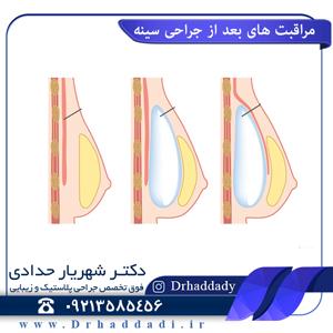 مراقبت های بعد از جراحی سینه