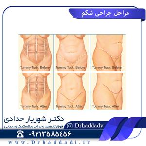 مراحل جراحی شکم