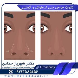 تفاوت جراحی بینی استخوانی و گوشتی