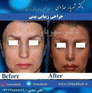 هدف از جراحی بینی