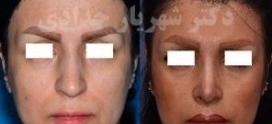 هدف تان از جراحی بینی چیست؟