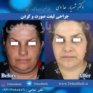جراحی لیفت صورت و گردن از روبرو