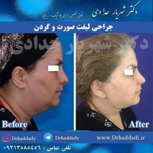 جراحی لیفت صورت و گردن از پهلو